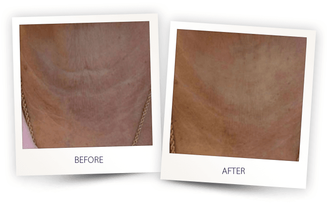 Skin laser treatment by Alma