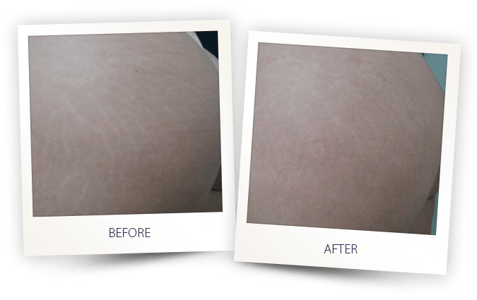 remove stretch marks following pregnancy