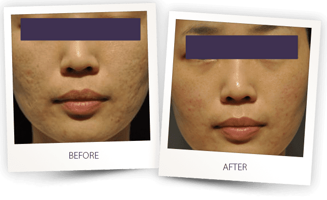 laser treatment acne scars removal