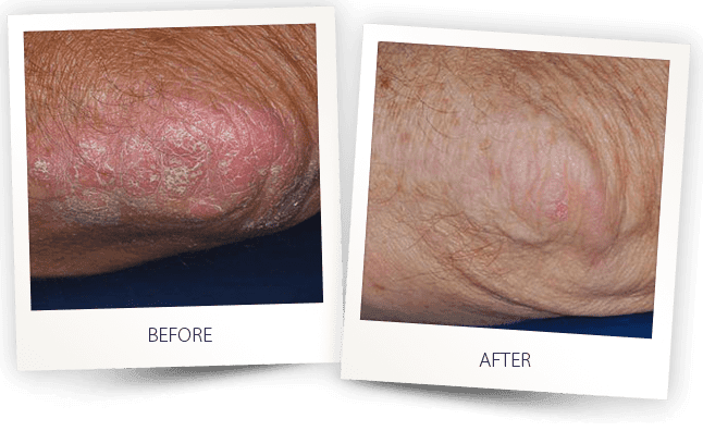Psoriasis uvb light therapy treatment by Alma