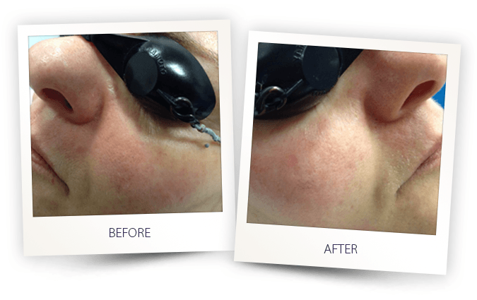 before and after photo of vascular lesions IPL treatment