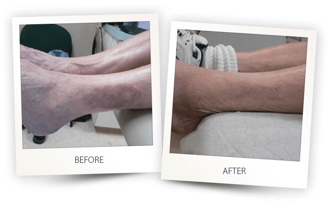 vitiligo skin condition laser treatment