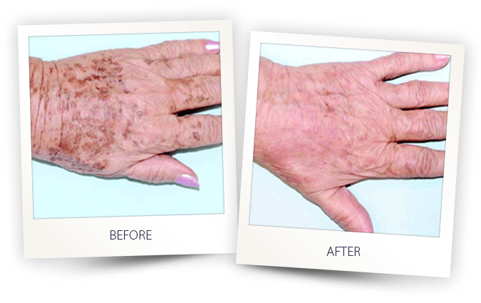 Age spots treated with laser and IPL