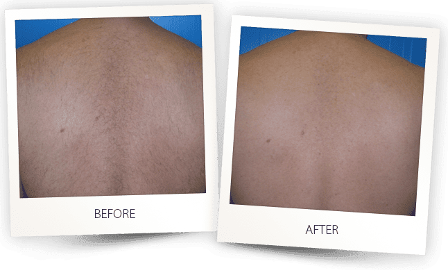 hair removal before and after photo
