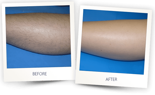 laser hair removal Soprano ICE Platinum