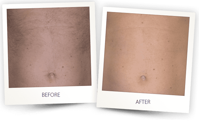 laser hair removal by Alma