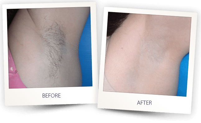 hair removal results