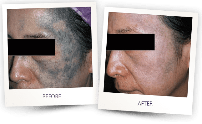 face tattoo removal laser