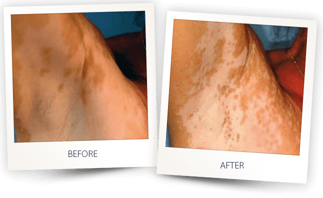 vitiligo skin discoloration laser treatment