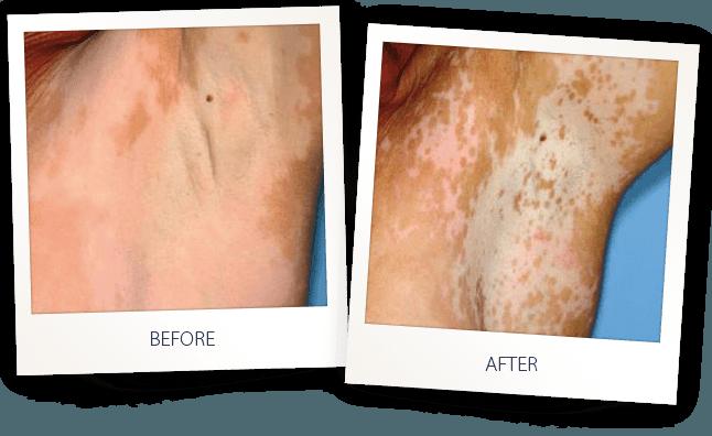 vitiligo skin disease laser treatment