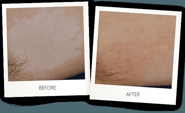 vitiligo skin treatment by Alma