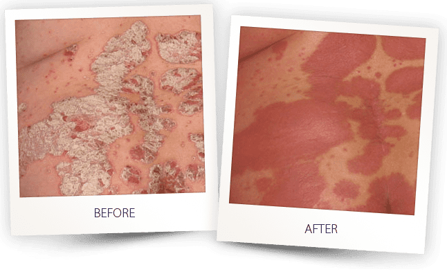 Psoriasis uvb light therapy treatment