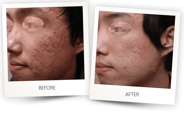 Treating acne scars with radiofrequency
