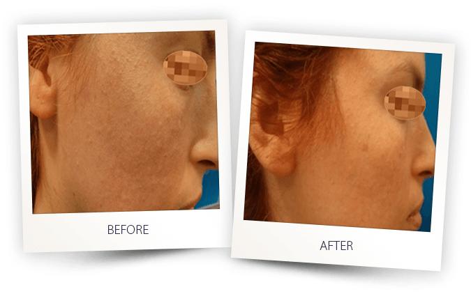 Dye VL IPL treatment for Skin pigmentation pigmented lesions