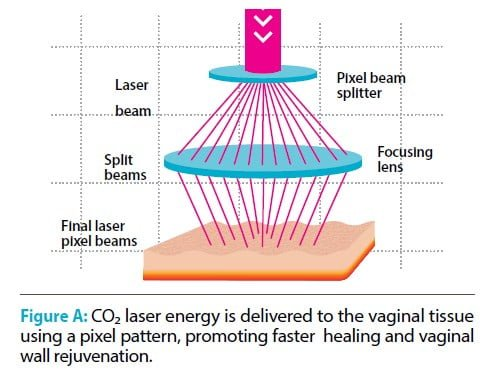 FemiLift | Pixel CO2 laser
