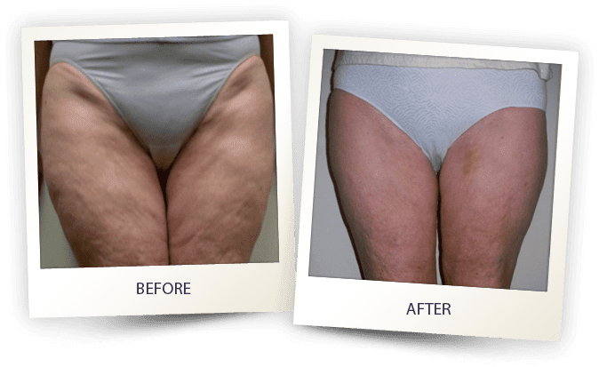 Cellulite treatment before and after photos