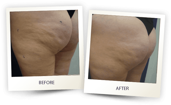 What is cellulite treatment