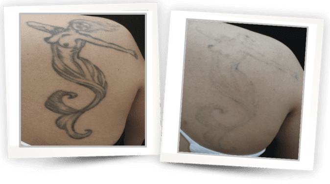laser tattoo removal - how to remove a tattoo
