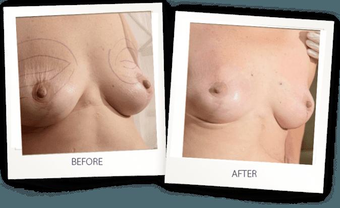 breast reconstruction using fat transfer