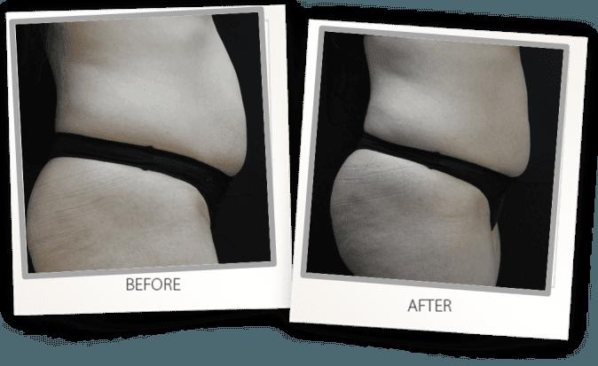 Accentuate skin tightening