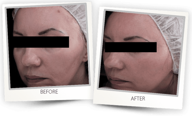 CO2 Skin Rejuvenation