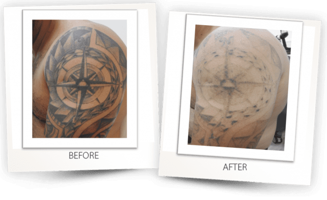 PICO CLEAR tattoo removal