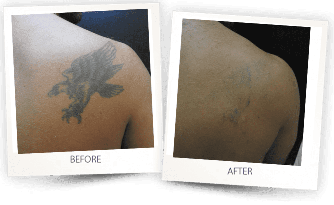 Tattoo removal with PICO CLEAR