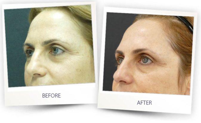 Skin resurfacing with Colibri applicator