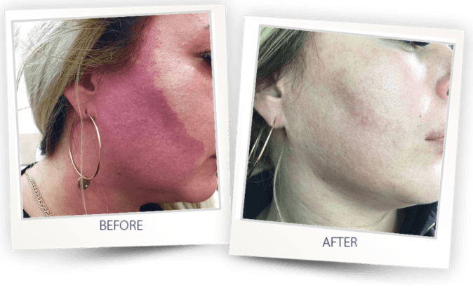 Port wine vascular lesions treatment with Dye_VL