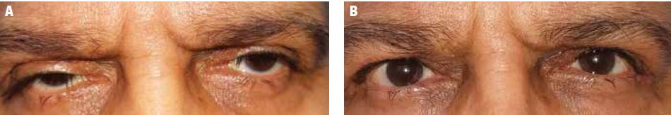 Blepharoplasty with CO2 before and after