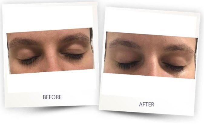 Blepharoplasty treatment with Colibri