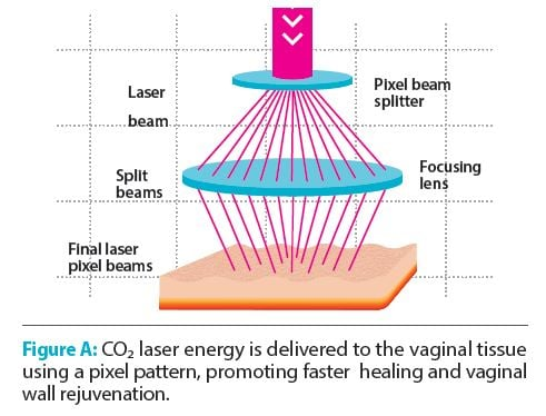CO2 laser for Gyn treatments