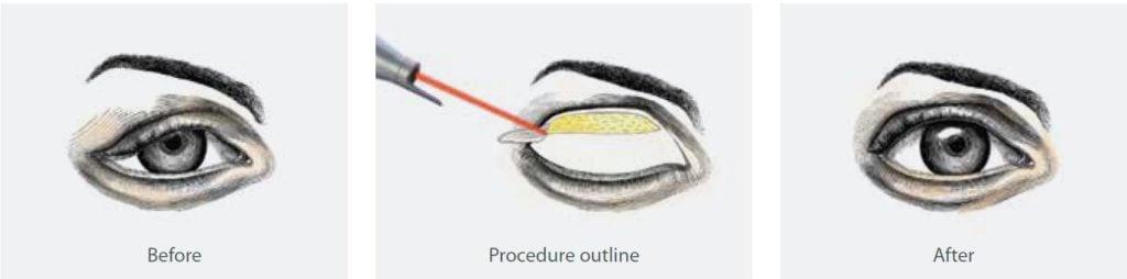 Blepharoplasty- upper eyelid