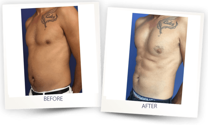 6 pack fat transfer