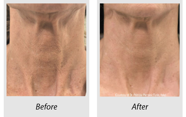 Before and after Profhilo neck treatment -