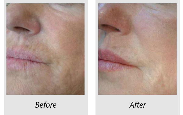 Before and after perioral Profhilo treatment